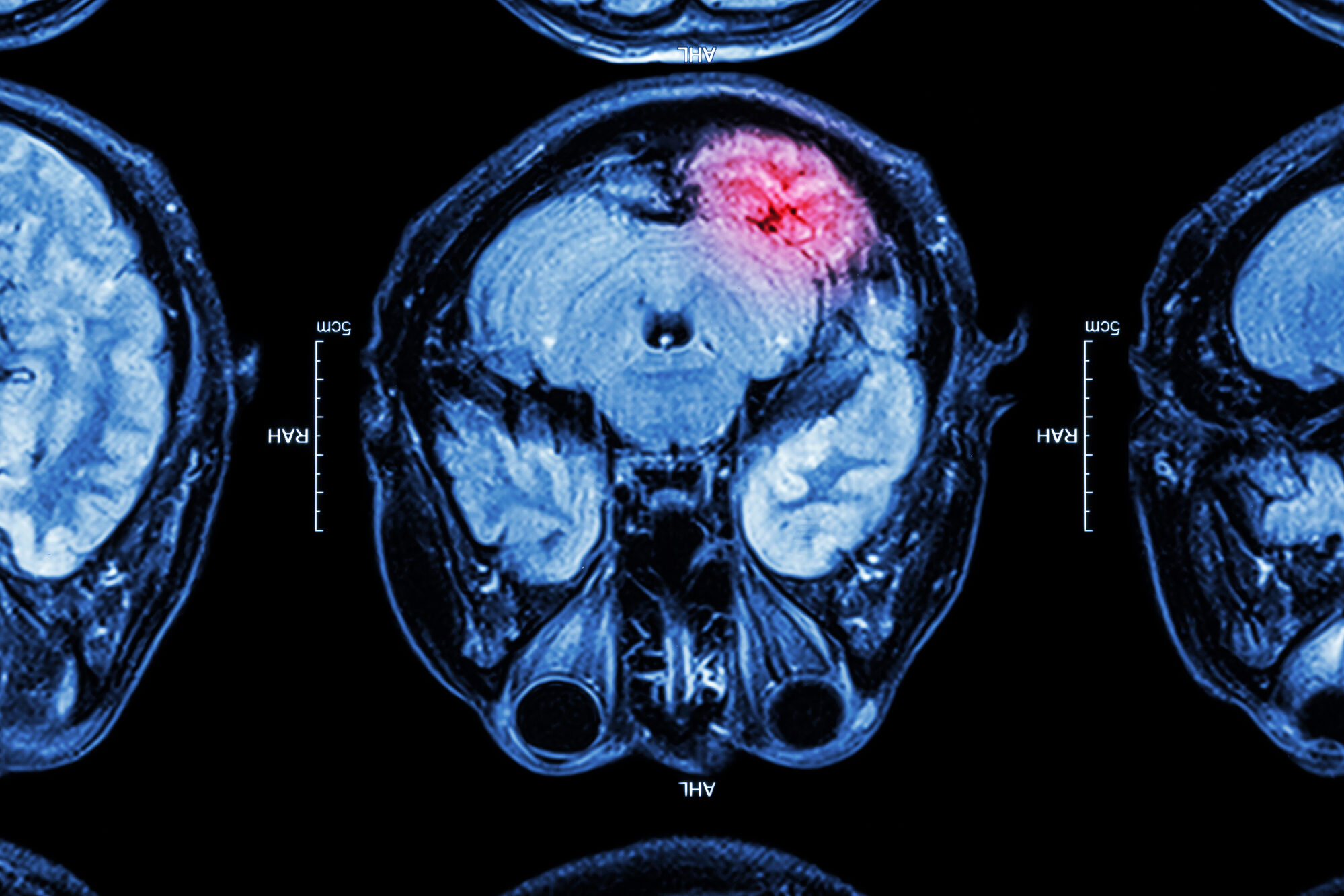Do You Have Traumatic Brain Injury Questions?